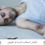 أهم أعراض انسحاب البيسه والهيروين من الجسم
